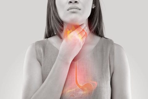 GERD causing heartburn in chest, stomach and throat