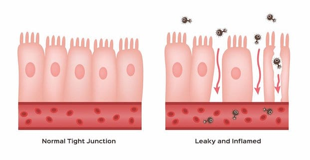 Leaky gut causing inflammation, bloating and pain