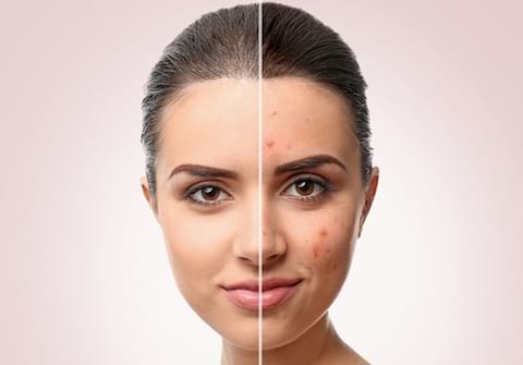 natural solutions to acne using naturopathic medicine in Toronto